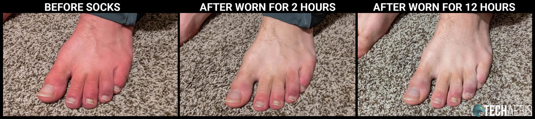 Photos showing feet before, after 2 hours, and after 12 hours of the MP Merino Wool Socks 37.5 being worn